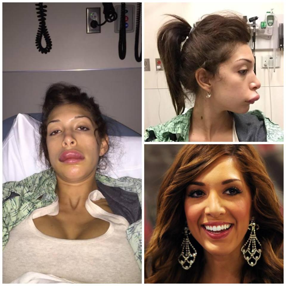 Farrah : Sa chirurgie esthétique tourne au vinaigre.