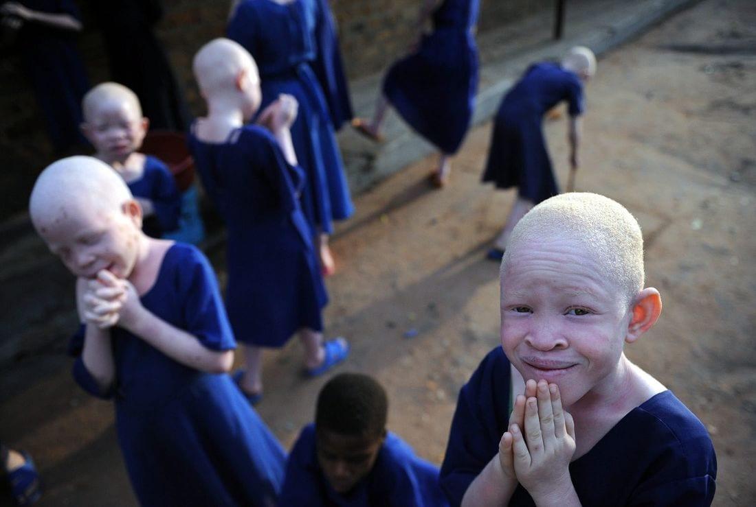 Tanzanie : des albinos vendus à 75 000 euros