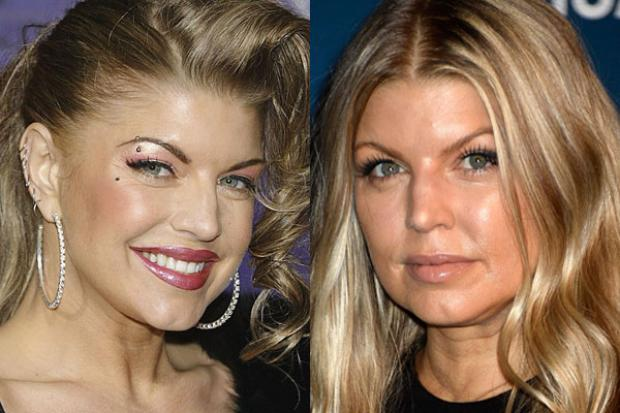 Hollywood-star-Fergie-Plastic-Surgery-