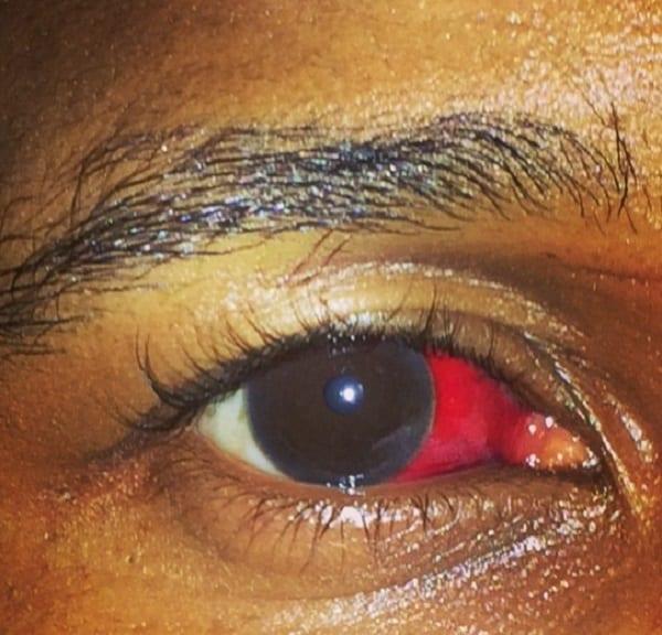 Usher se retrouve avec un œil rouge sang après une bagarre: photo