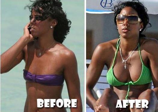 Beyoncé, Lady Gaga, Rihanna, Nicki M… les célébrités avant et après la chirurgie esthétique !