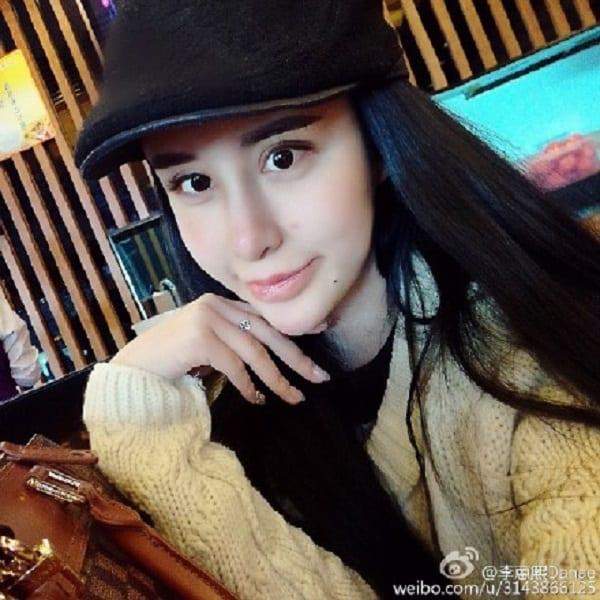 nrm_1428953197-danae_undergoes_extreme_surgery_weibo