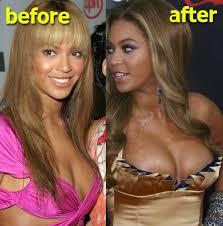 Beyoncé avant et après la chirurgie esthétique