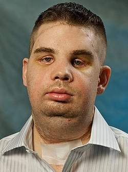 Santé : L'incroyable réussite d'une greffe complète du visage (v
