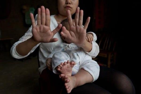 Un bébé chinois naît avec 15 doigts et 16 orteils: PHOTOS